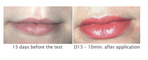 lip-remodeling-restructuring