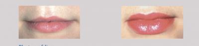 fuller-lips-naturally